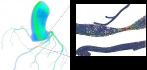 graphics of artery